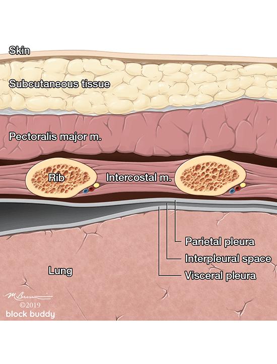 Skin, Tissue, Rib, & Lung Diagram