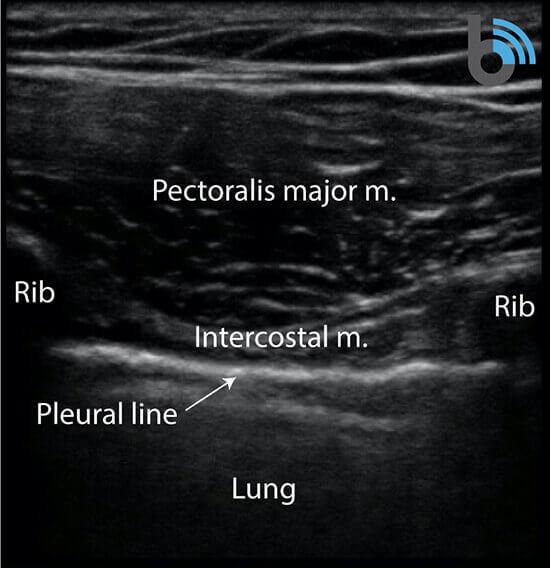 Lung ultrasound sonoanatomy linear