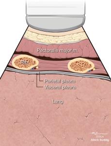 Lung, Rib Diagram