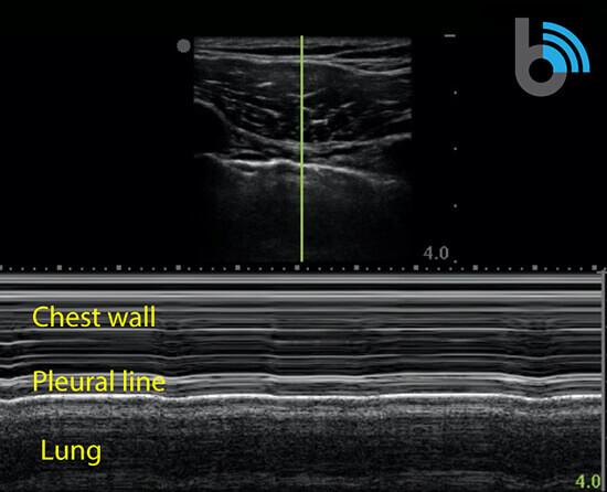 Lung ultrasound no pneumonia