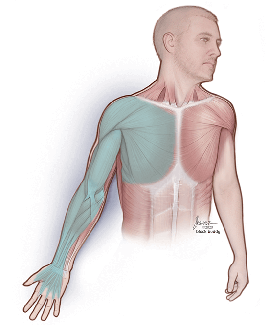 interscalene block medical illustration