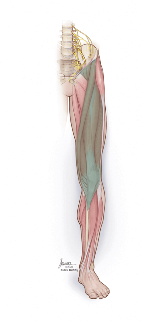 Leg Muscles Shaded Illustration of Fascia Iliaca Block