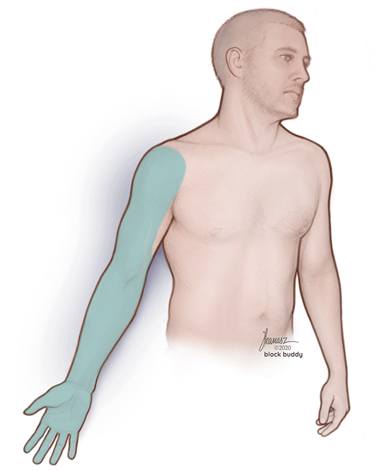 Man Illustration with Arm Highlighted in Green for Supraclavicular Block Nerve Block Education