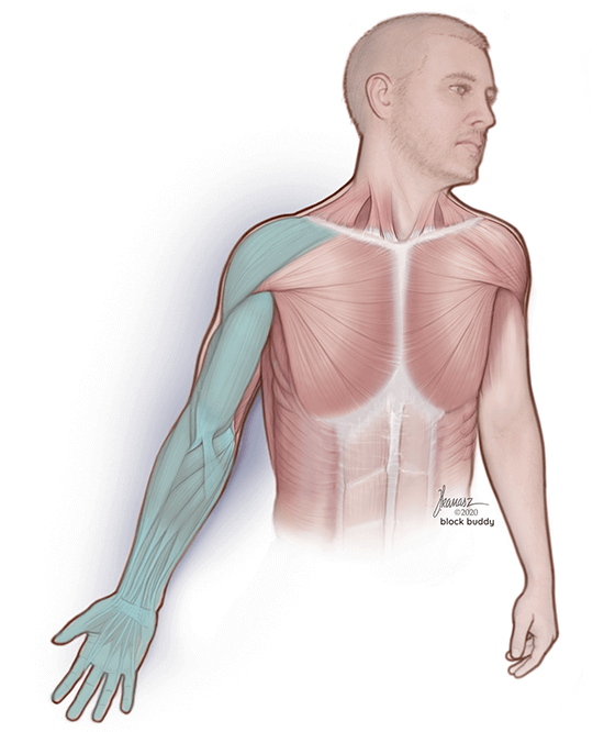 Man Illustration of Arm Muscles Highlighted in Green for Supraclavicular Block